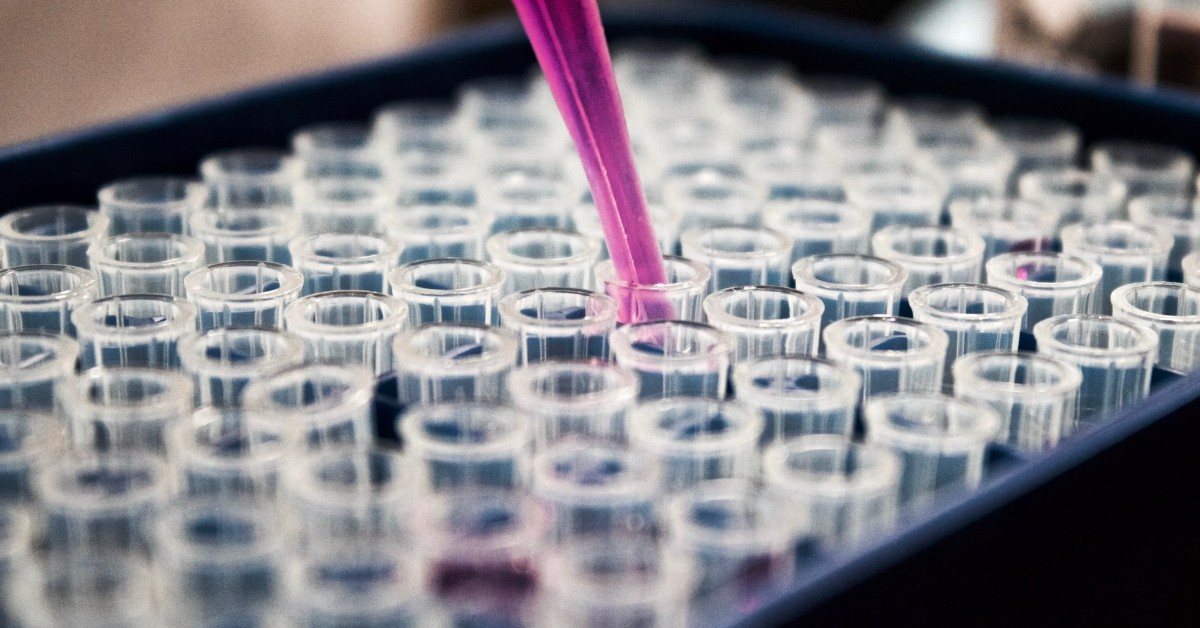 Vials in a clinical lab being filled and the process being recorded in an Electronic Lab Notebook.
